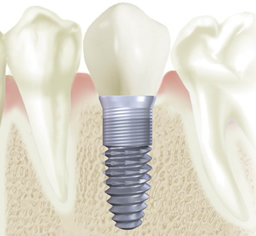 Are dental implants safe?